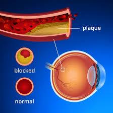 flashing lights in eye stroke eye strokes retinal artery and retinal vein occlusions