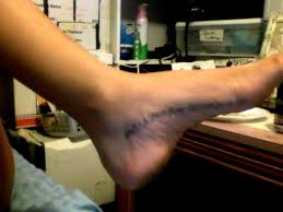 foot tattoo aftercare question foot tattoo considerations risks sterishoe blog should you get