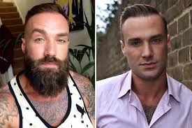 best hairtransplant in the world calum best shaves off his hipster beard to prepare for his hair