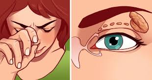 what causes eyes to be sensitive to light home remedies for dry sensitive eyes do you experience stinging