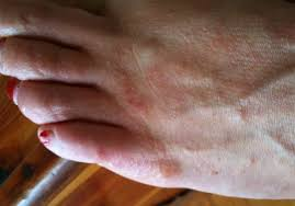 itchy bumps on hands that spread bumps on feet itchy red small white bumps on bottom top of feet