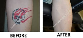 laser tattoo removal before and after photos orlando