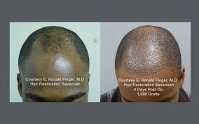 african american hair transplant neograft hair transplant results with automated fue hair restoration