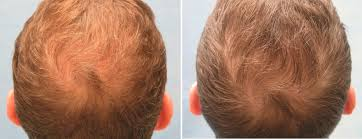 hair stylist gor hair loss in nj prp for hair loss platelet rich plasma bernstein medical