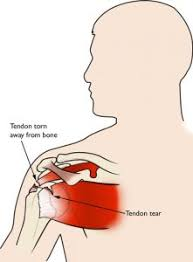 Rotator Cuff Injury From Bench Press 5 Common Workout Injuries And Preventions Yes4all Official Blog
