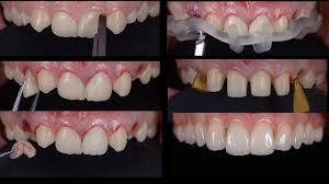 dentcof dental implants