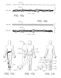 patent us20120109241 enhancement of biological functioning by