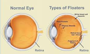 bright flashes of light in eye many people see small specks flashes of light or bright streaks of