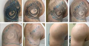 tattoo removal shoulder tattoo removal windsor ontario