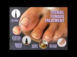 how long does it take to get rid of toenail fungus with apple