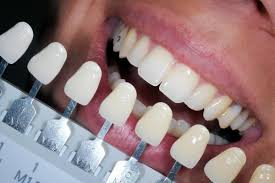 what is teeth whitening and what are the best kits and treatments
