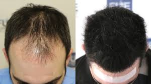 how thick is 1000 hair graft fue hair transplant 3467 1000 grafts in nw class iv a dr