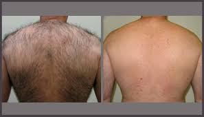 for men skinpossible laser u0026 light calgary laser clinic