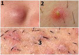 yellow puss filled ingrown hair ingrown underarm hair treatment prevention more