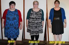 gastric sleeve mouthless mutters