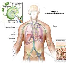 aids related lymphoma treatment pdq u2014patient version national