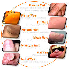 How Do You Get Planters Warts by All The Facts About Warts On Body