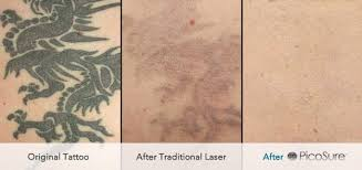 picosure tattoo removal uk andrea catton laser clinic burnley