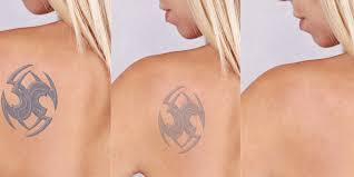 tattoo removal frequently asked questions dr meets clinic is sharing some top most and frequently asked