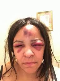 makeup classes island rikers island inmate beat up captain in august his second
