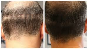 how to colour in a scar in your hairline what is scalp micropigmentation smp explained hairline ink