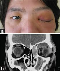 b b mycose si ge update in pathological diagnosis of orbital infections and