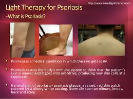 light treatment for scalp psoriasis light therapy for psoriasis nirredlighttherapy com
