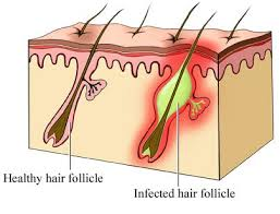 pretty pubic hair defined folliculitis pictures symptoms treatment and prevention