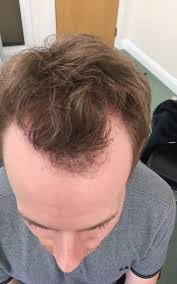 fienes hair transplant bald ambition why i had a hair transplant at 28