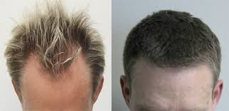 rogaine for women success stories fue hair transplant toronto read my review dr rahal