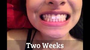results of using goody hair bands to gap tooth