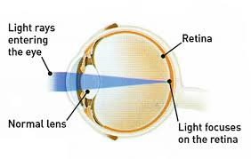 light streaks after cataract surgery cataract surgery peregrine eye and laser institute