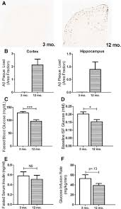 the effects of peripheral and central high insulin on brain