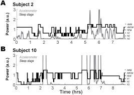 sleep patterns in parkinson u0027s disease direct recordings from the