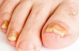 how to get rid of toenail fungus fast with 5 natural cures