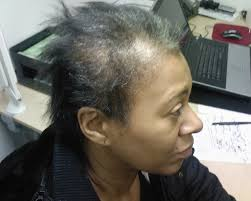balding hair styles for black women the hair centre female hair loss androgenetic alopecia results