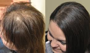 hair weaves for thinning hair the best shoos for anyone who has thinning hair the hearty soul