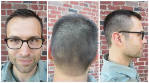 the perfect men u0027s hairstyle for a receding hairline video and