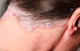 psoriasis treatment scalp psoriasis treatment and causes pictures and home remedies