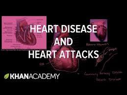 heart disease and heart attacks video khan academy