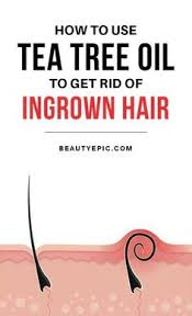 essential oil for ingrown hair how to prevent ingrown hairs ingrown hair pinterest health