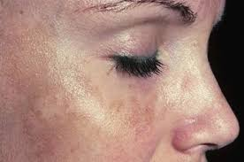 light patches on skin brown spots on face causes pictures treatment remedies