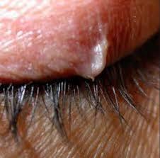 why do ingrown hairs hurt ingrown eyelash on upper eyelid removal treatment symptoms