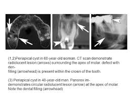 present for 60 year woman odontogenic cysts and tumors ppt online