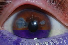 Blindness After Cataract Surgery Intraoperative Floppy Iris Syndrome Archivos De La Sociedad