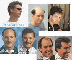 men s non surgical hair replacement before after photos