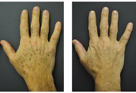 brown spots age spots and tattoo removal san diego dermatology