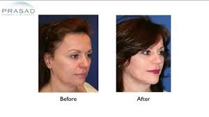 hairstyles that cover face lift scars facelift surgery rhytidectomy dr amiya prasad ny