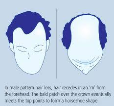 Shoo Hair shoo for hair growth best hair 2017