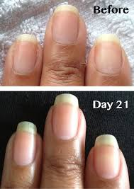 peeling nails pure nail oil and cuticle oil challenger becky u0027s